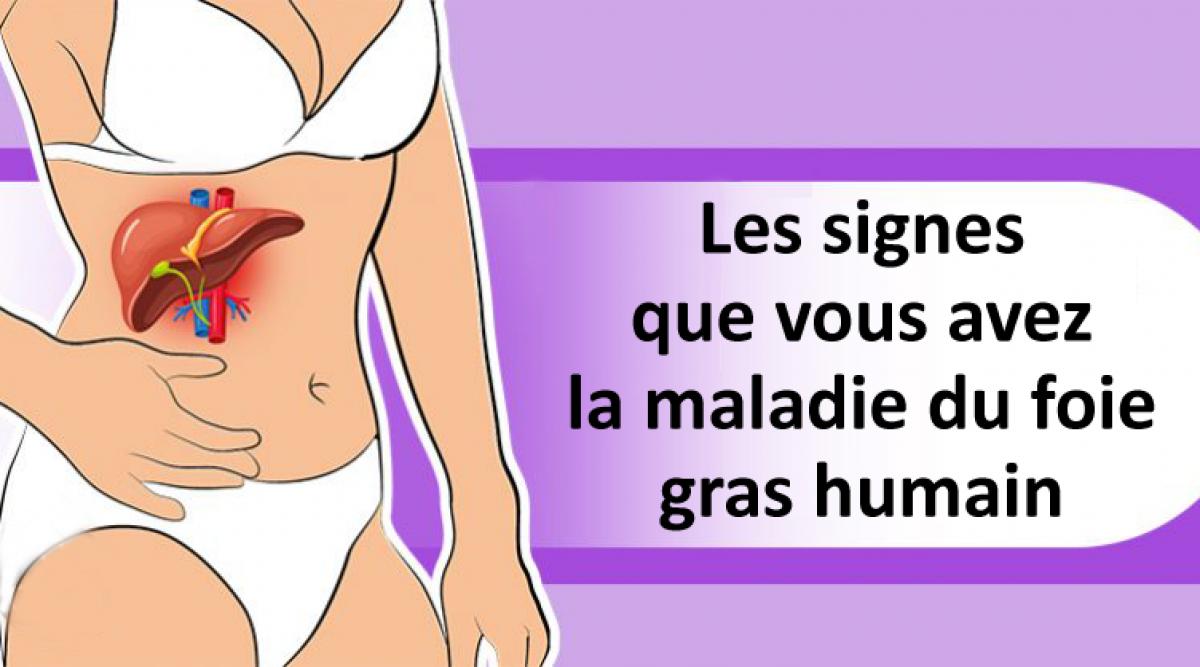 1 personne sur 5 souffre sans le savoir de la maladie du foie gras humain