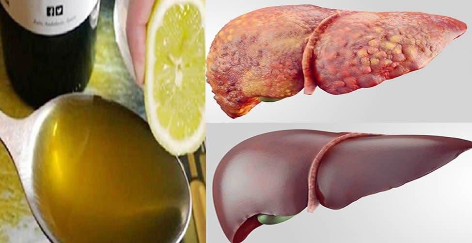 aliments qui aident à guérir un foie malade