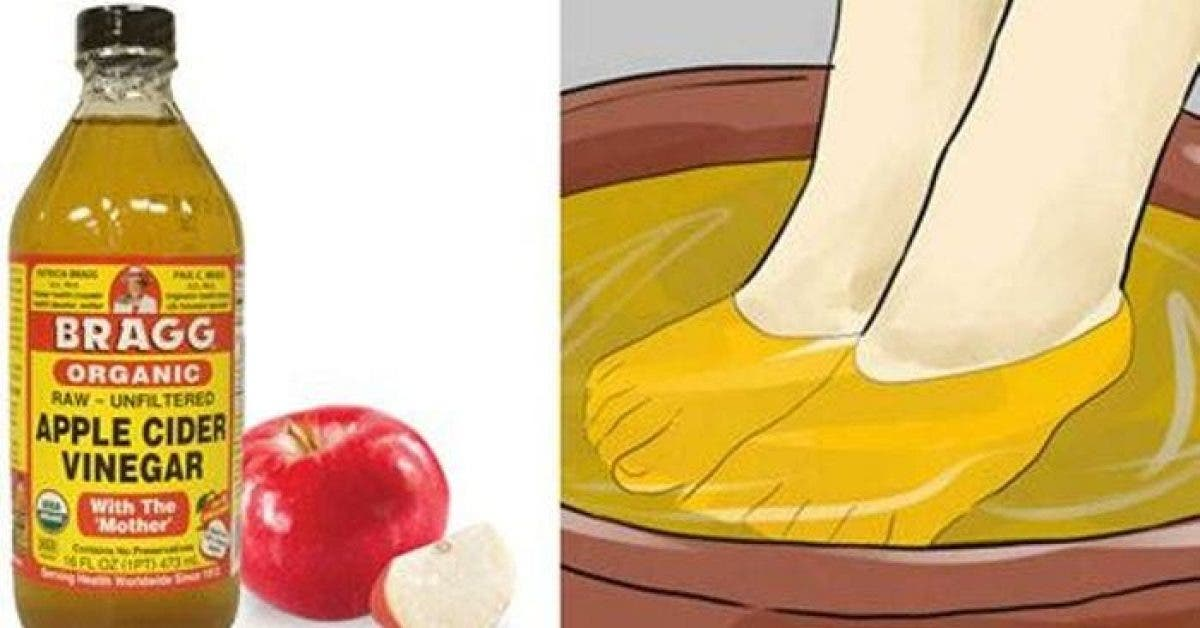 10 nouvelles utilisations du vinaigre de cidre Incroyable 1