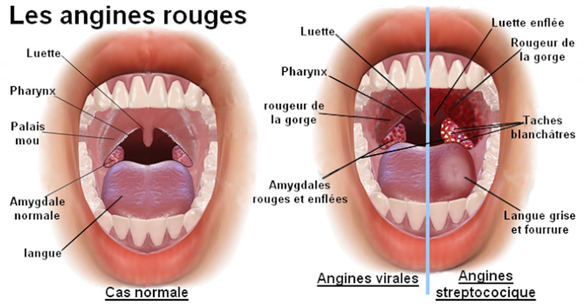 10 remèdes naturels pour lutter contre l'angine streptococcique