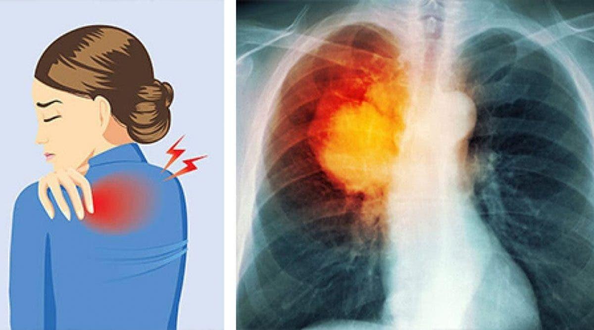10 signes du cancer du poumon