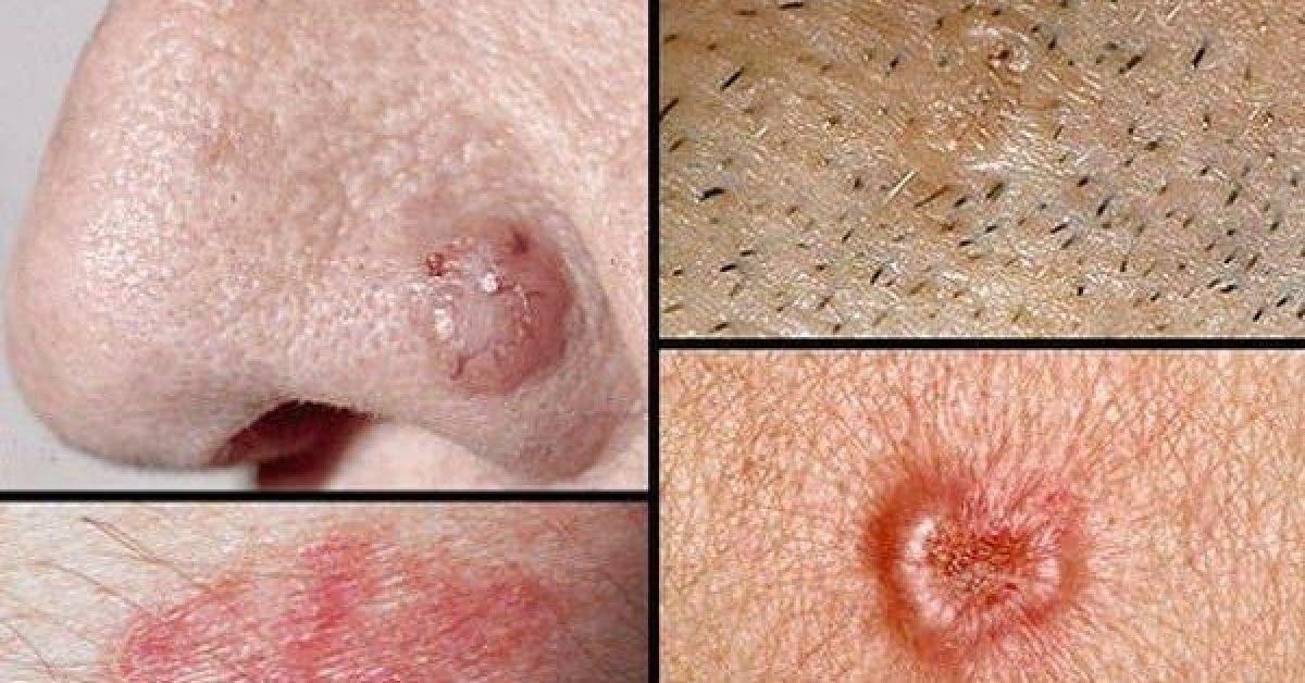10 signes que le cancer se développe dans votre corps. Message à partager autour de vous !