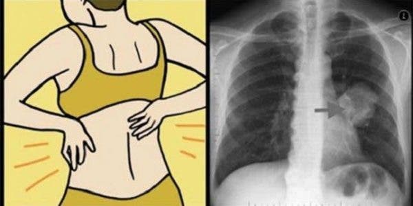10 signes qu'un cancer pourrait se développer dans votre corps