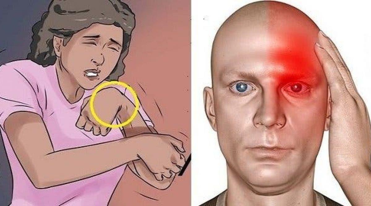 10 symptômes alarmants que vous risquez d'avoir un accident vasculaire cérébral (AVC) et que bientôt d'autres succèderont