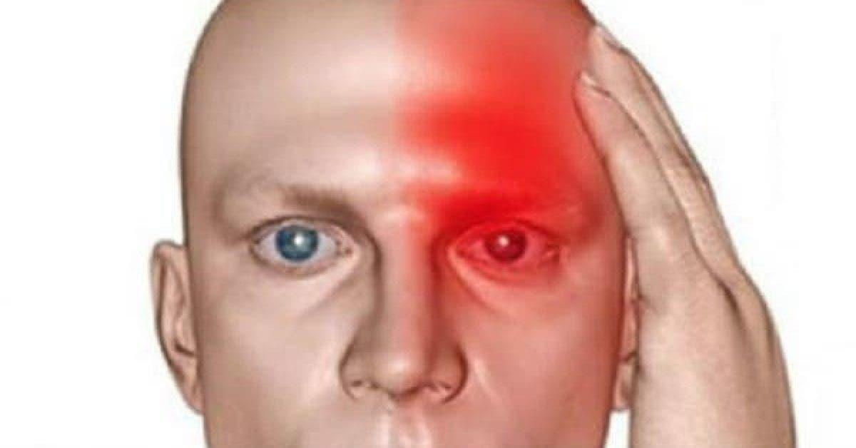 10 symptômes inquiétants qui indiquent qu'AVC est proche