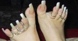 12-photos-des-pires-pieds-au-monde