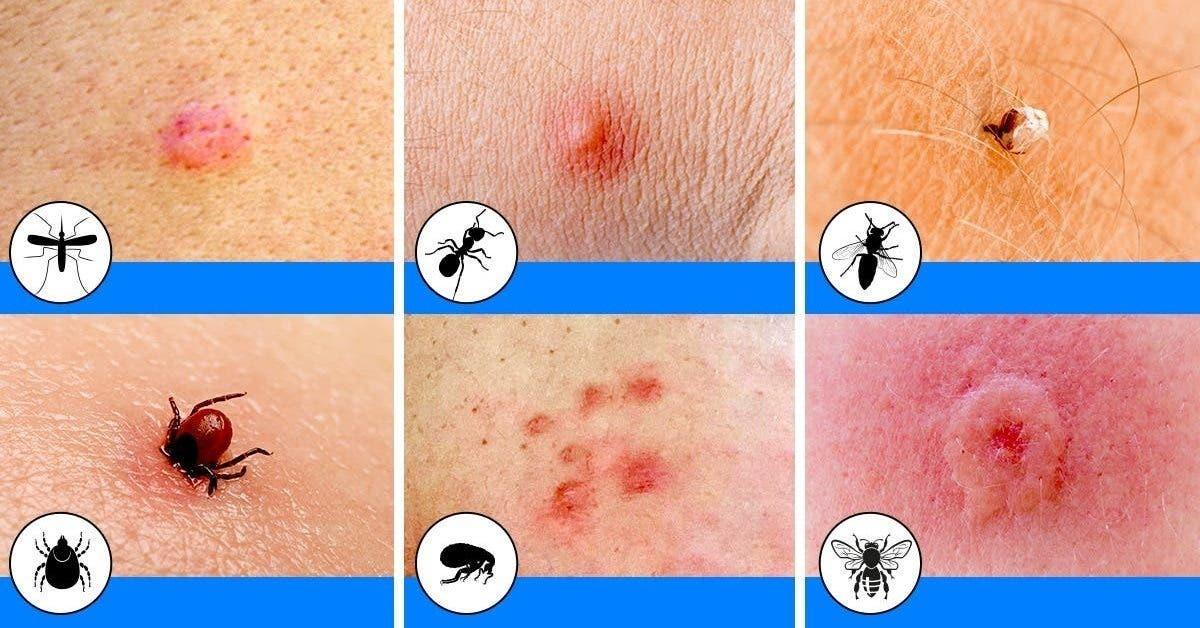 12 piqûres d'insectes communes et comment reconnaître chacune d'elles