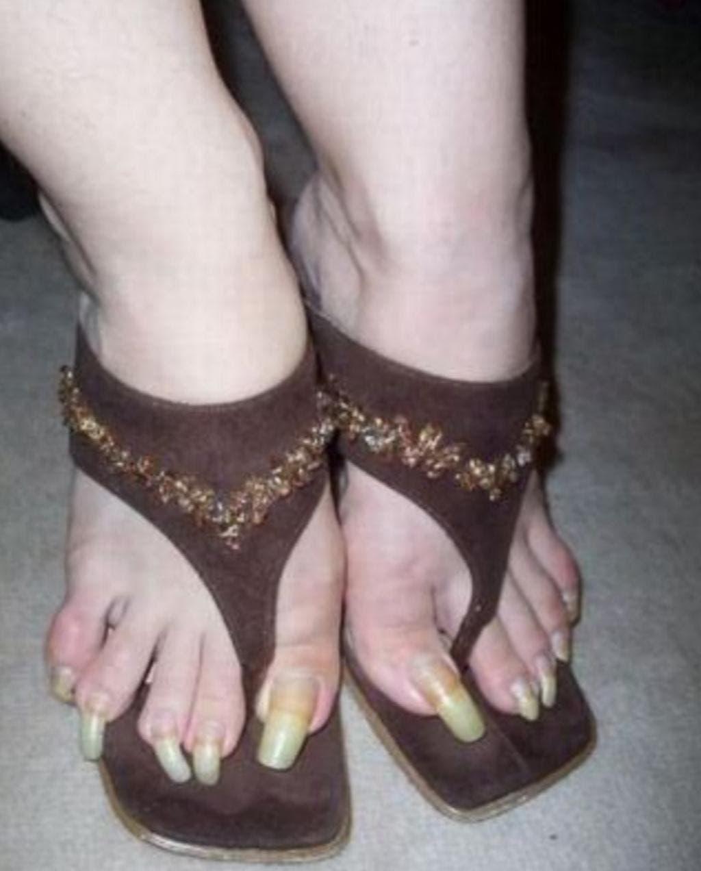 12 pires pieds au monde 12