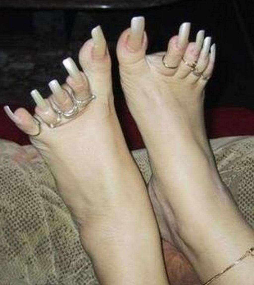 12 pires pieds au monde 2