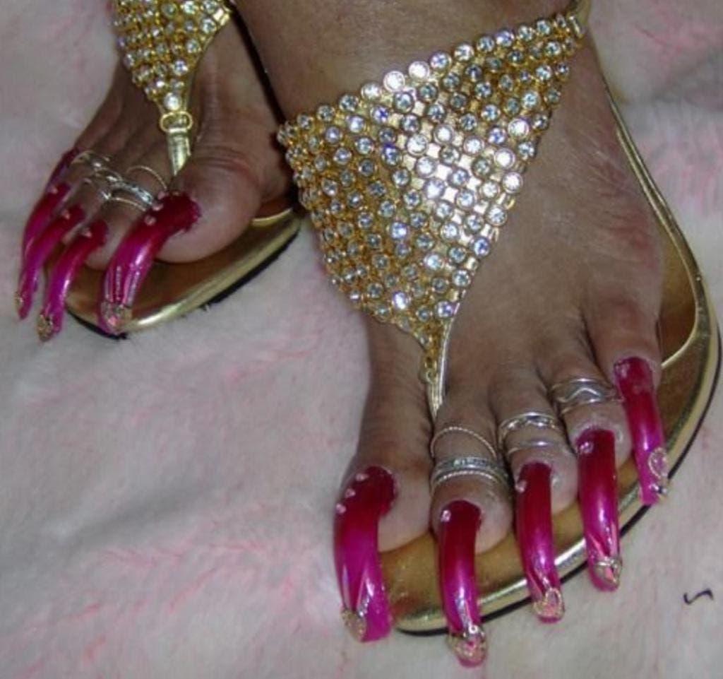 12 pires pieds au monde 5