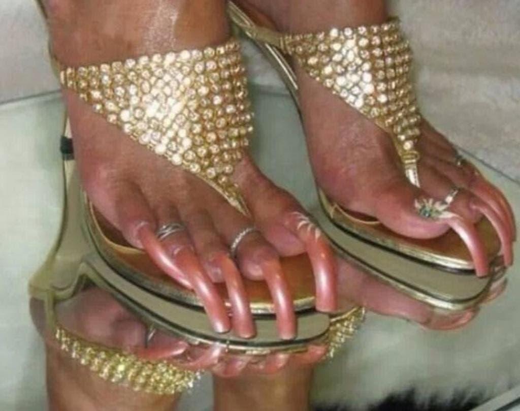 12 pires pieds au monde 6