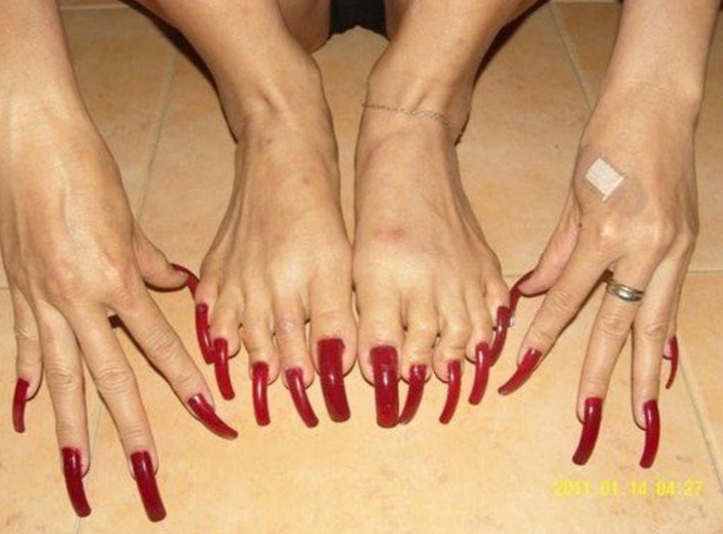 12 pires pieds au monde 8
