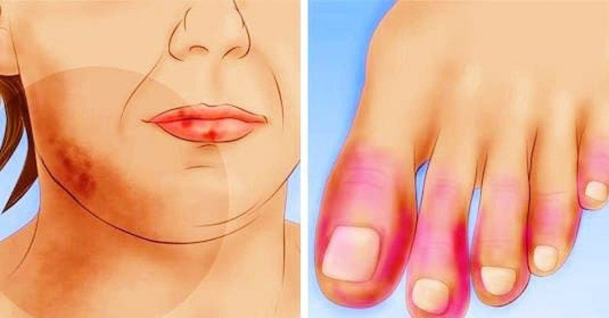 13 early warning signs of lupus you need to know and what to do the moment you see them 1 1