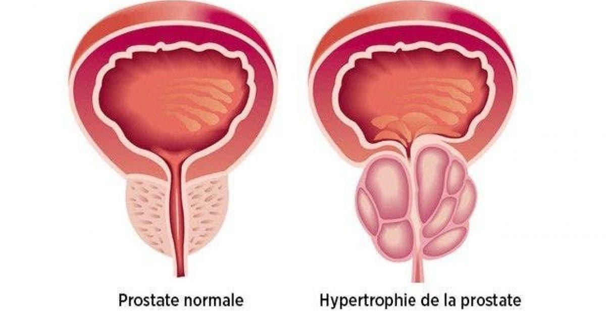 13 signes de cancer que les hommes doivent connaitre lien externes fatima 1