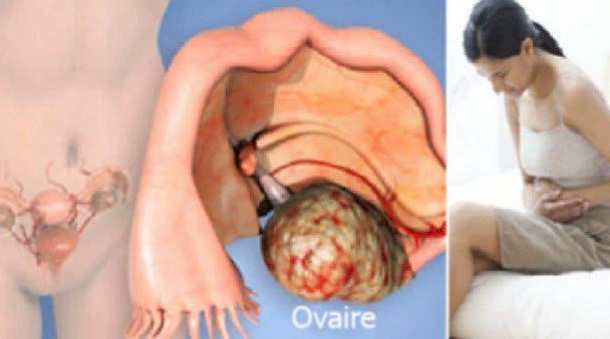 13 symptômes mortels du cancer ignorés par la plupart de femmes