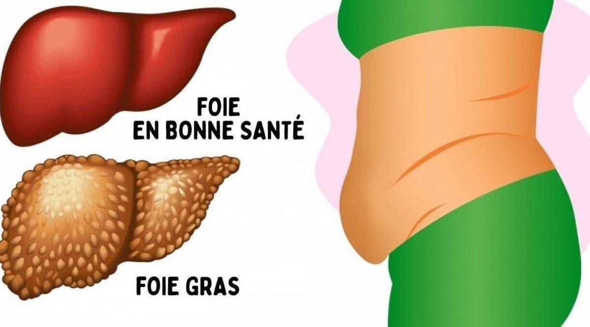 signes que votre foie est plein de toxines qui vous feront grossir