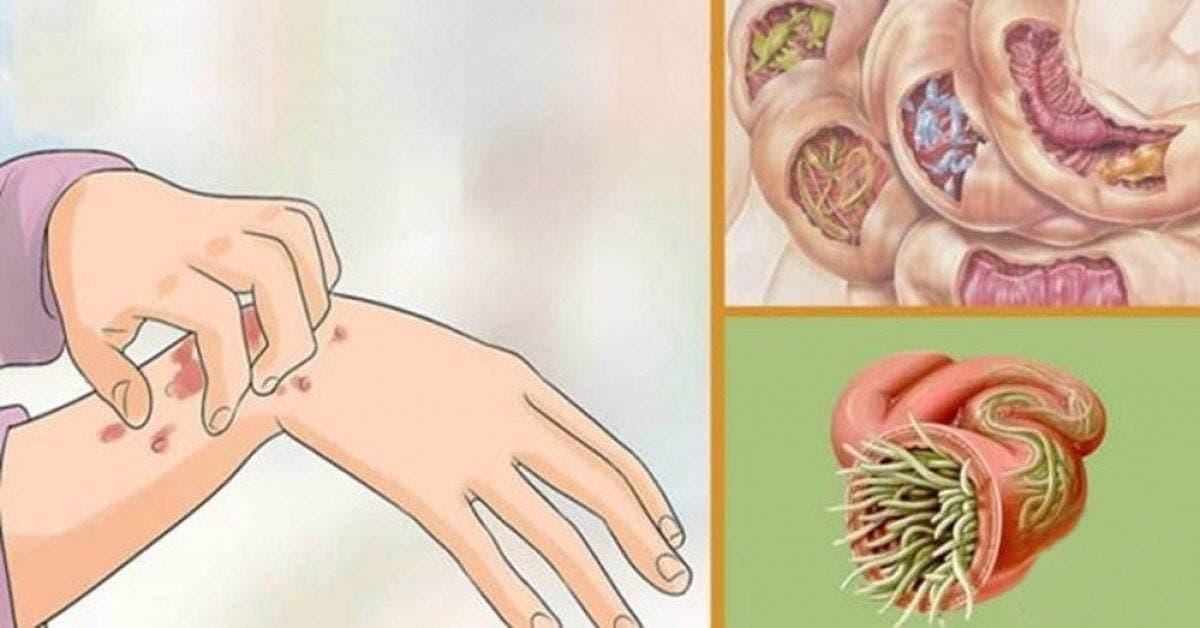 19 signes que des parasites vivent dans votre corps 1 1
