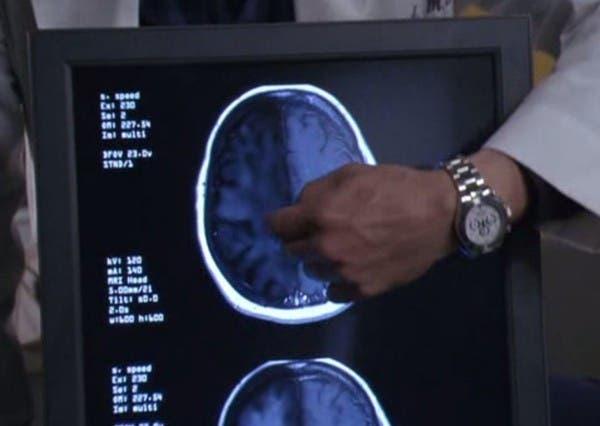 20-choses-que-vous-ne-savez-probablement-pas-sur-le-cerveau-humain7