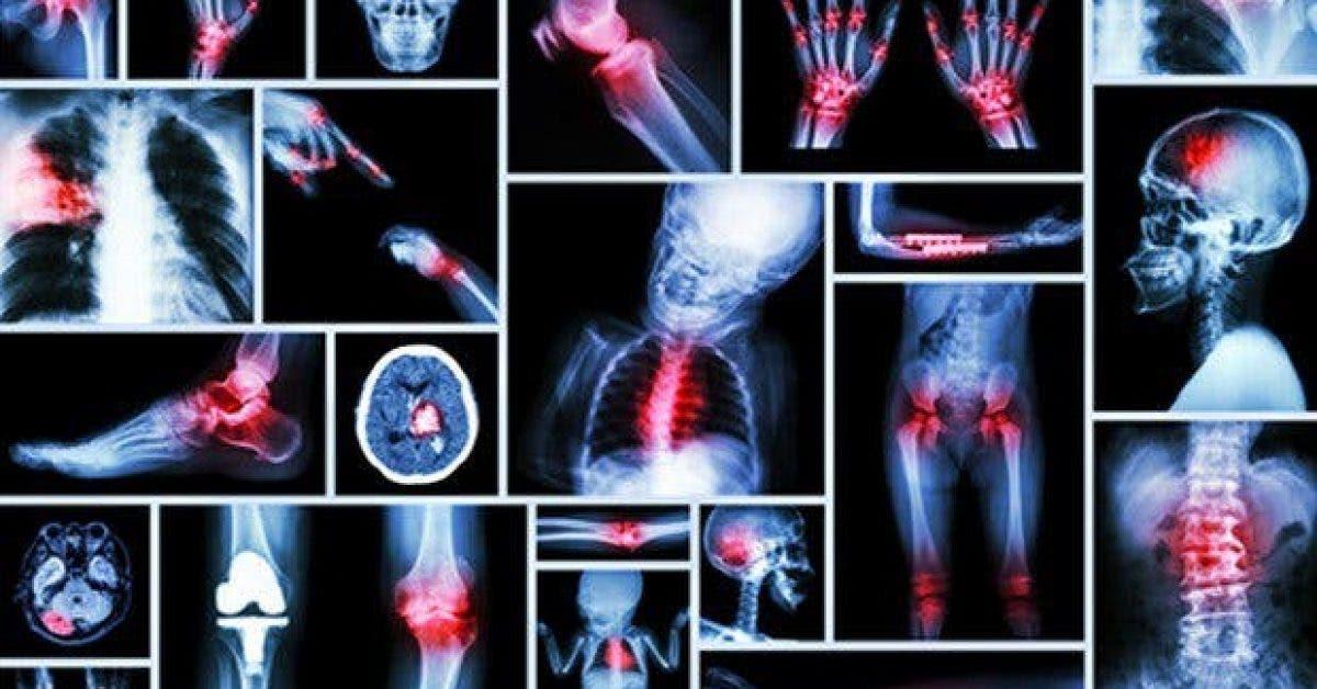 20 sources de douleur dans le corps qui sont chacune directement liees a des etats emotionnels specifiques 1