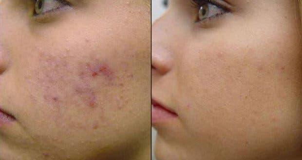 7-remedes-naturels-contre-les-cicatrices-dacne