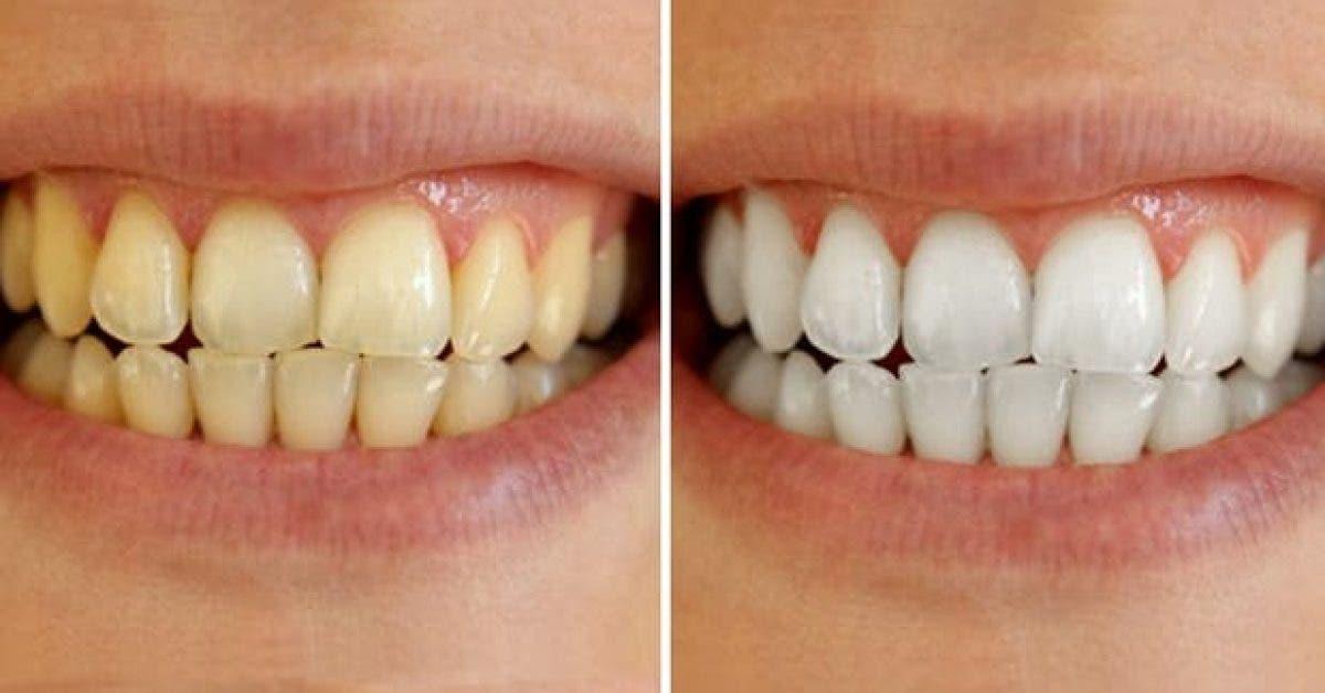 3 remedes pour blanchir vos dents chez vous 1