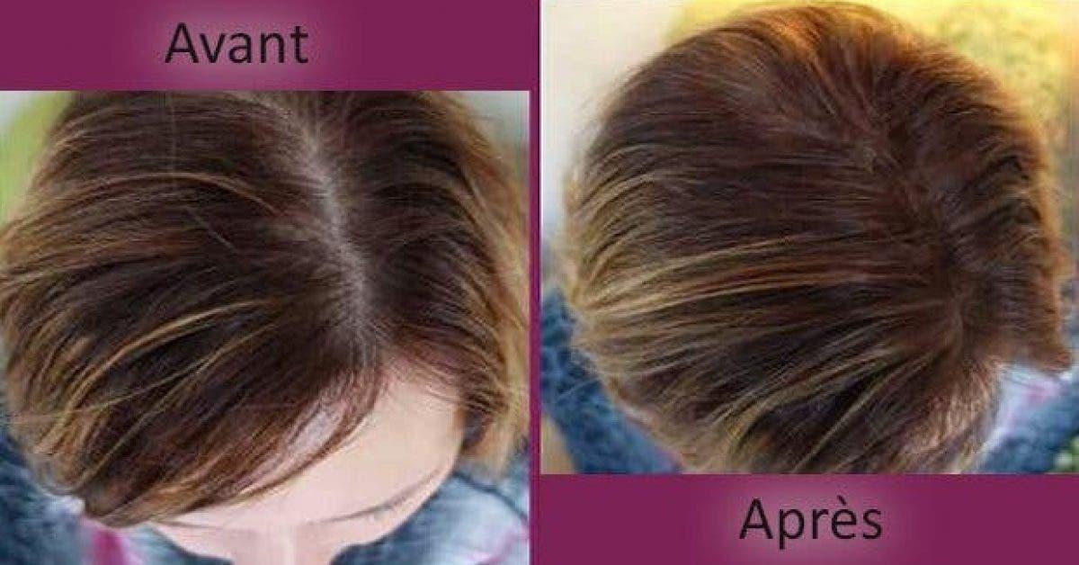 4 astuces naturelles qui accelerent la repousse des cheveux 1