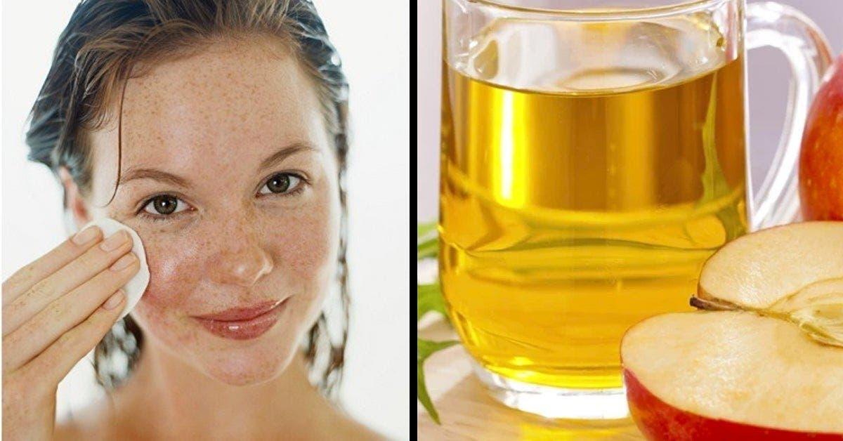 4 bienfaits surprenants du vinaigre de cidre sur la peau 1 1