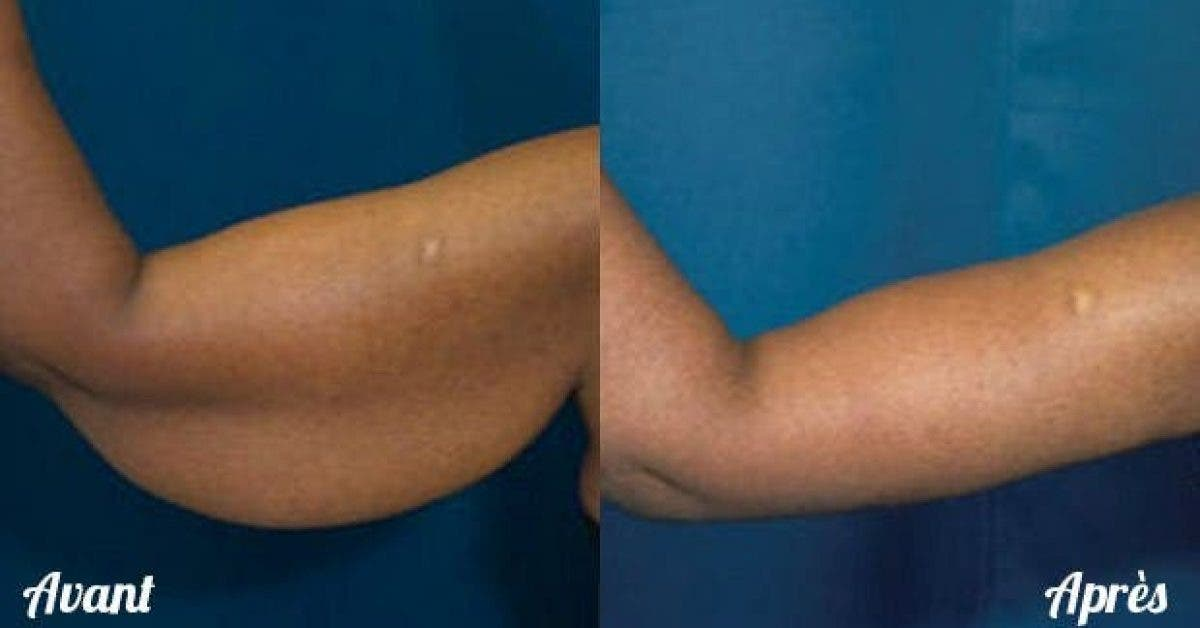 4 facons de tonifier vos bras sans materiel 1