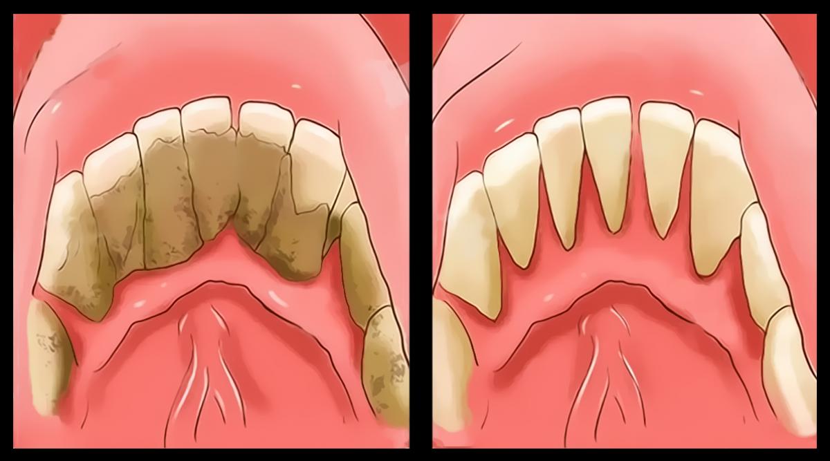 4-manieres-deliminer-le-tartre-des-dents-naturellement