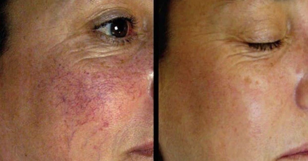 4 remedes naturels pour traiter la couperose ou les varices sur le visage 1
