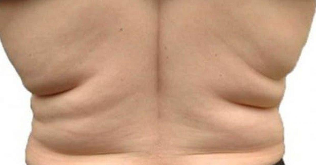 4astuces pour perdre la graisse du dos 1