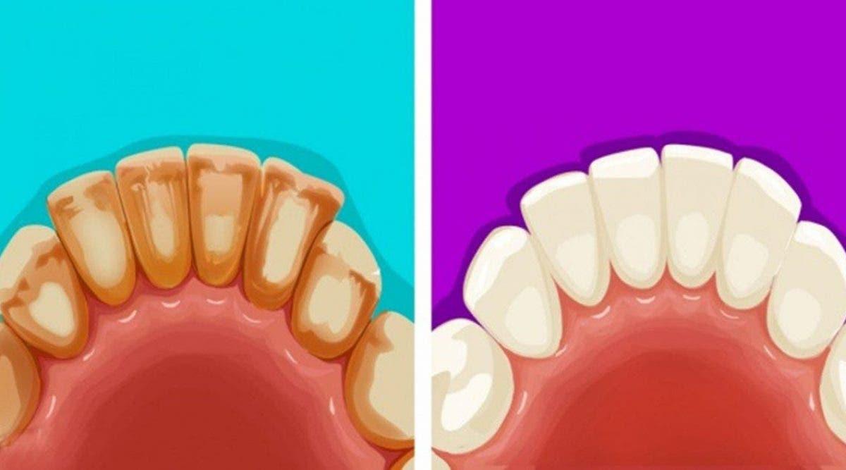 astuces naturelles pour éliminer la plaque dentaire et blanchir les dents