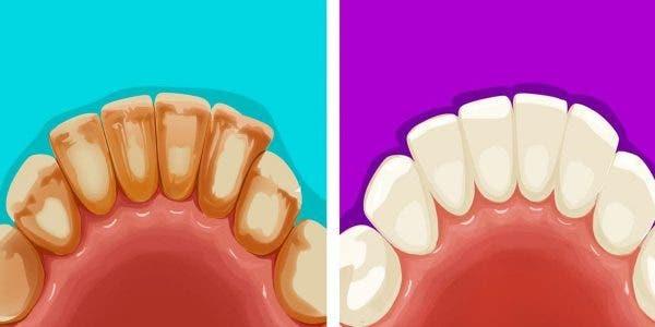 5-astuces-pour-eliminer-naturellement-la-plaque-dentaire