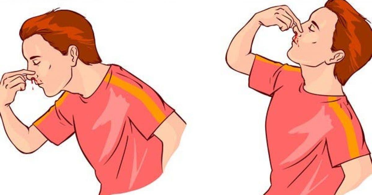 5 facons darreter instantanement le saignement du nez 1