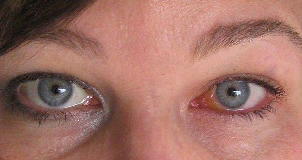 comment faire pour dégonfler les yeux