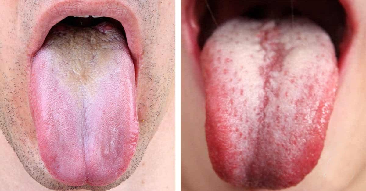 5 signes alarmants que votre langue renvoie sur votre santé