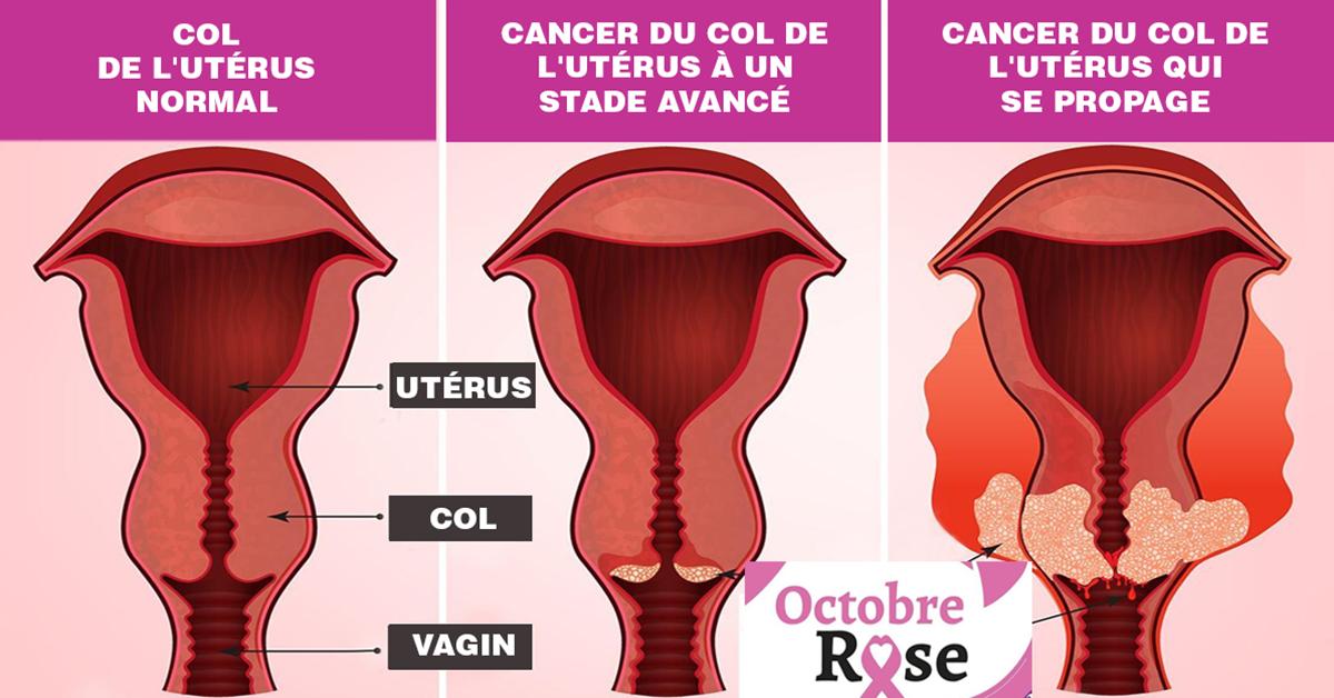 5-symptomes-du-cancer-du-col-de-luterus