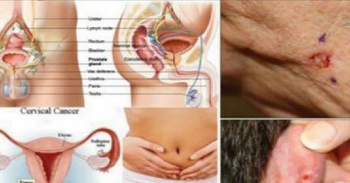 5 types courants de cancer et leurs symptomes que vous devez connaitre 1