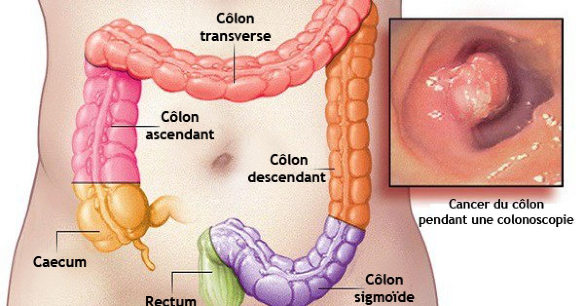 50% des cancers du côlon peuvent être évités en lisant ceci