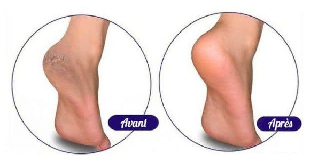 5remedes naturels pour traiter les pieds secs et abimes 1