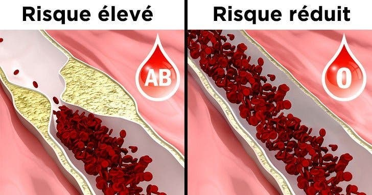 6 choses à savoir sur vous si vous êtes du groupe sanguin O