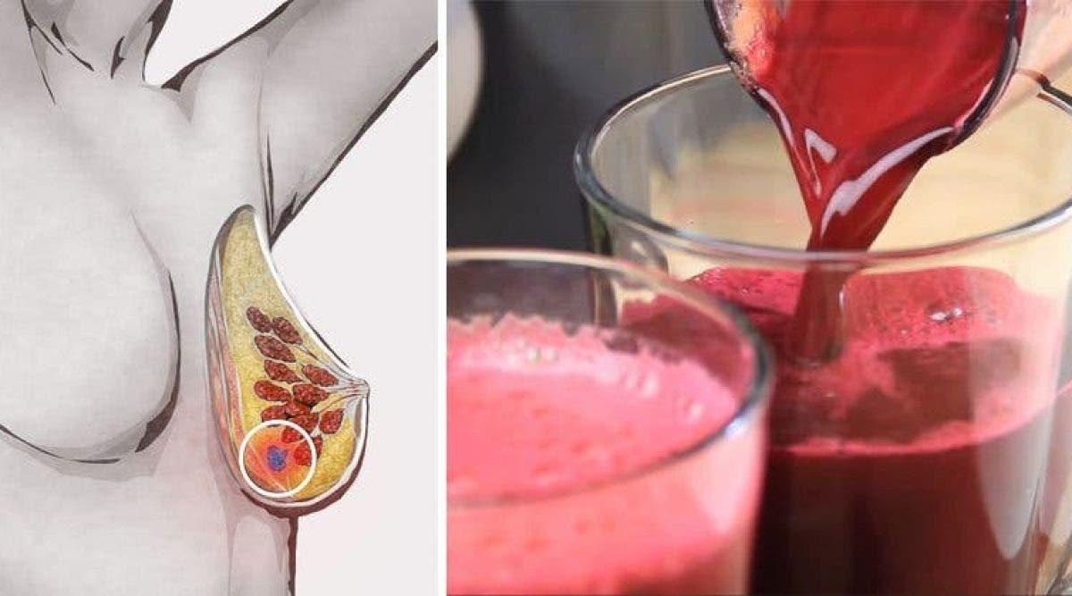 6 raisons pour lesquelles vous devriez boire du jus de betterave tous les jours