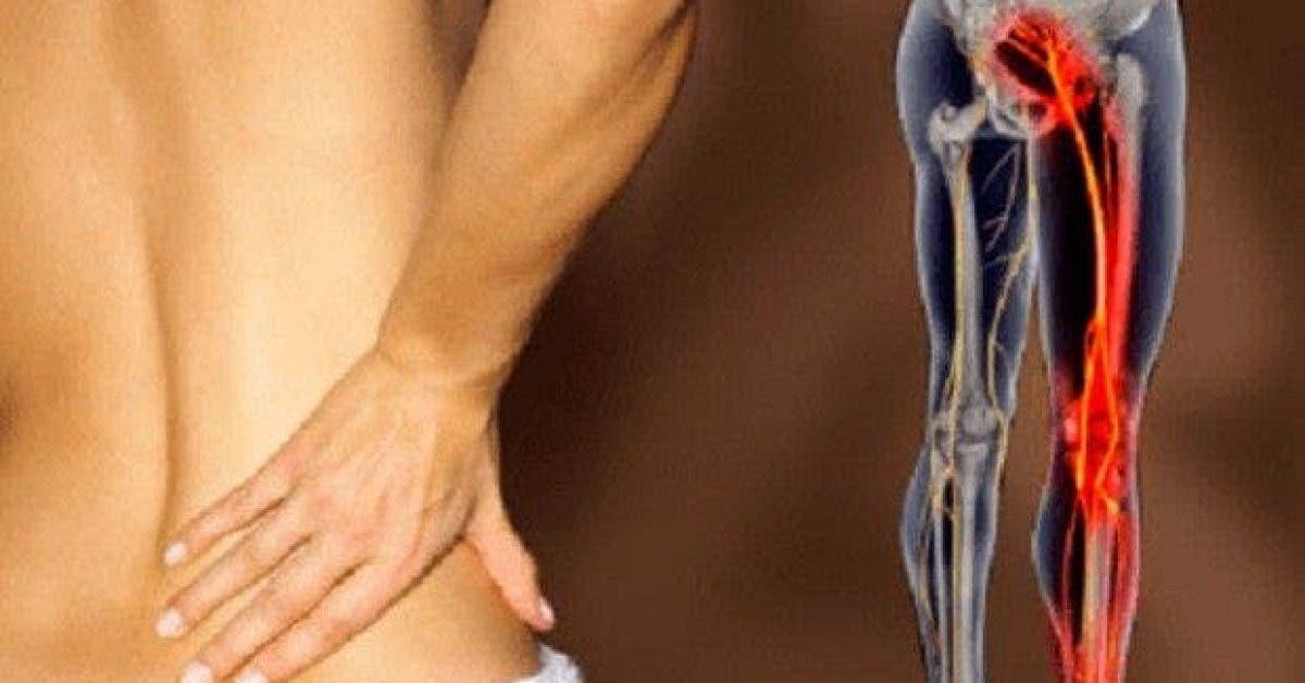 6 remedes naturels pour soigner la douleur sciatique 1