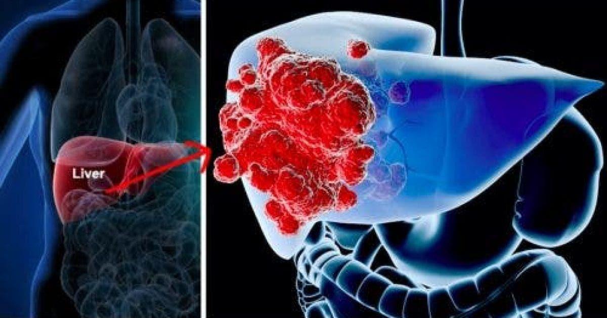 6 signes que le cancer du foie risque de se développer dans votre corps