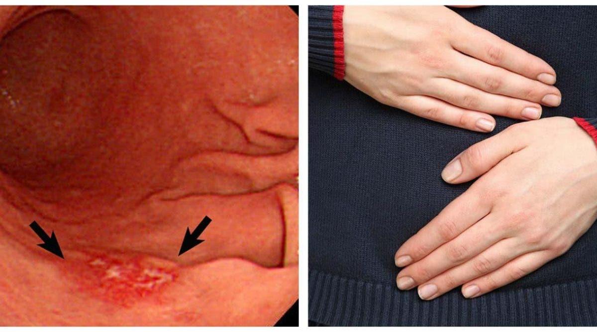 6 signes que vous pourriez avoir un cancer de l'estomac
