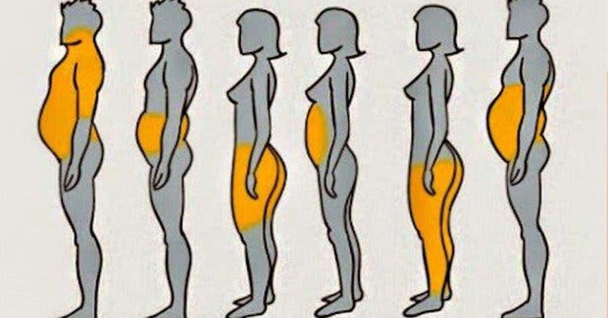 6 types dobesite et 6 solutions pour maigrir 1