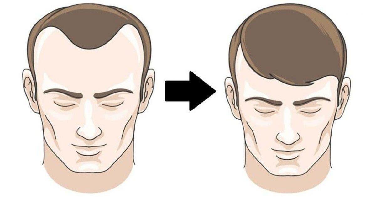 aliments qui stoppent la chute de cheveux en un rien de temps