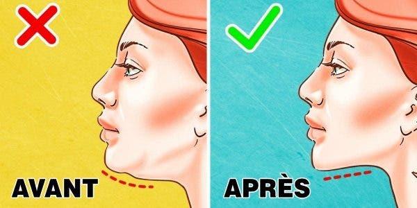 gras du visage