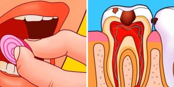 7-astuces-pour-soulager-les-douleurs-aux-dents