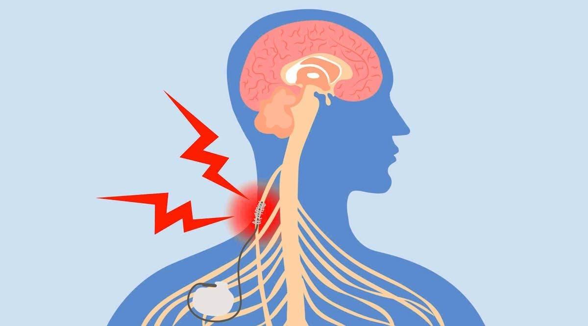 7-facons-de-stimuler-votre-nerf-vague-pour-soulager-linflammation-la-depression-les-migraines-et-plus